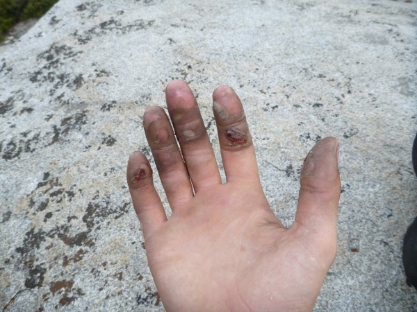 This is what my hand looked like at the top of the route