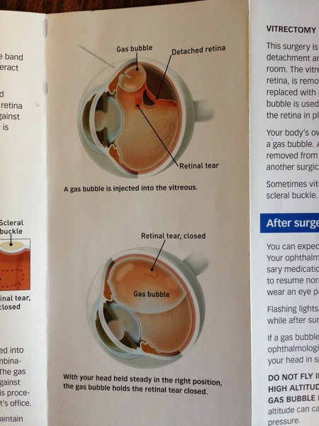How my detached retina was treated