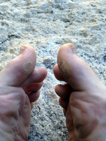 Big toe bigwall blisters at Texas Flake