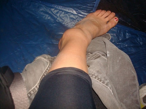 Bad ankle sprain. Tips for strong recovery? (OT) :: SuperTopo Rock ...