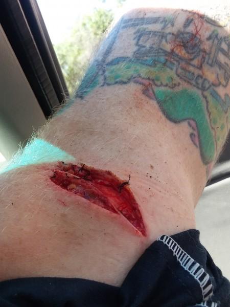 Chainsaw meet knee