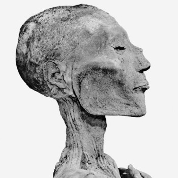 mummy of ramses the fifth with pock marks that some believe to have be...