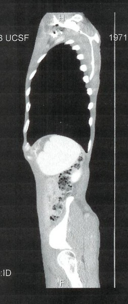 Upper tumors from Side Scan, Oct.14, 2010. At my worst so far in this ...