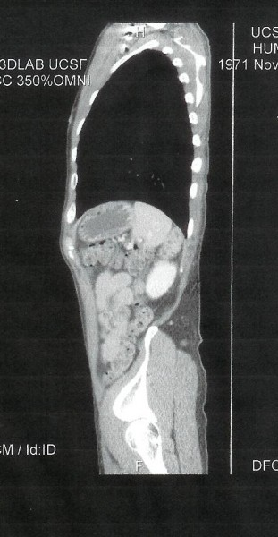 Side Scan, Dec. 22, 2010. Where is it going? Will it be back?