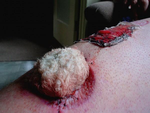 After the first Melanoma surgery, 2004. Paul Humphrey